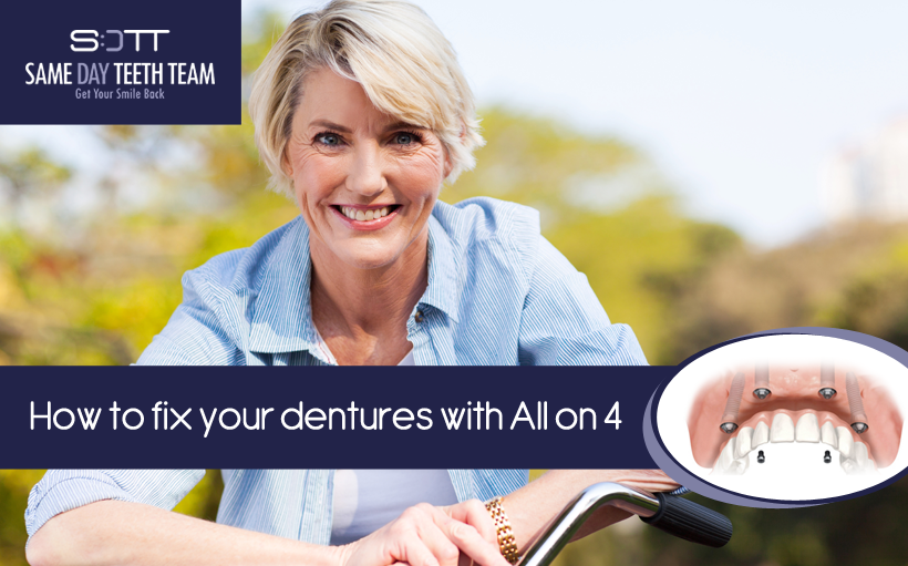 ow to fix your dentures with All on 4