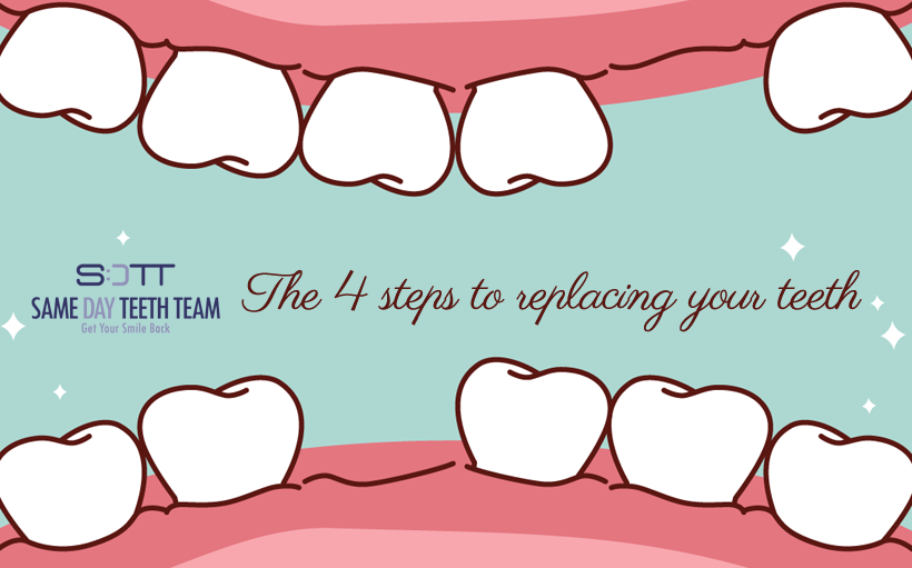 The 4 steps to replacing your teeth